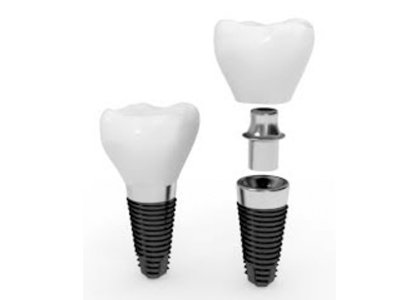 What are the Benefits of Implant Application?